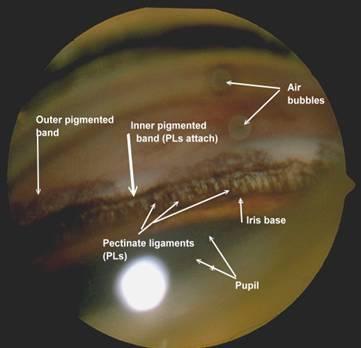 AOC-Eye-Info_Glaucoma002